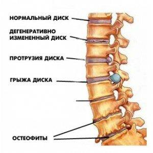 стадии повреждения позвоночника